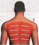 зона задней проекции легких применяется при лечении бронхите, воспалении лёгких,сухом и влажном кашле, простуде